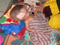 Enfant avec hydrocéphalie